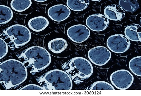 mutiple magnetic resonance image of brain and cranium - stock photo