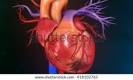 Myocardial Infarction 3d illustration