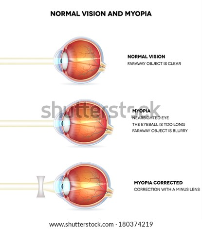 Myopia and normal vision. Myopia is being shortsighted. Myopia corrected with minus lens. Anatomy of the eye, cross section. Detailed illustration.  - stock photo