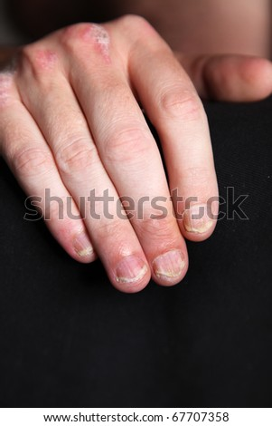 Nahaufnahme-Severe psoriasis - psoriasis of the fingernails and the hand - close up - stock photo