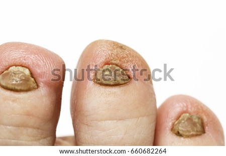 Nasty Nails On Foot Fungal Disease Stock Photo (Edit Now)- Shutterstock