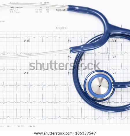 Neat studio shot of stethoscope over ecg graph - 1 to 1 ratio - stock photo