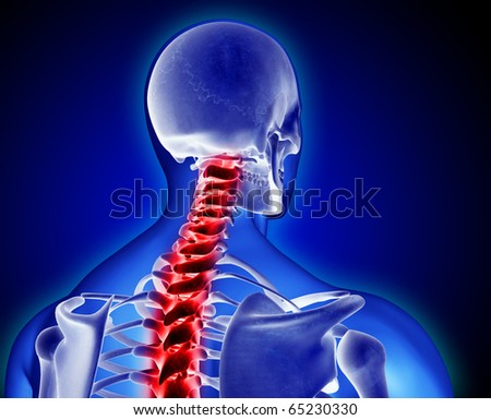 Neck and Back Pain, Backache - stock photo