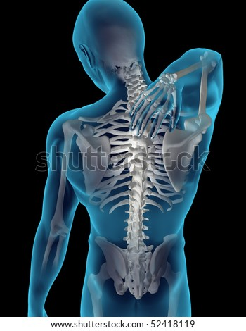 Neck Pain - stock photo