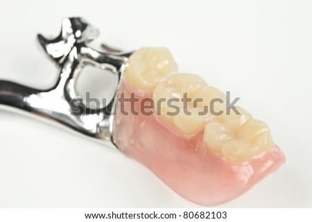 new dentures, braces - stock photo