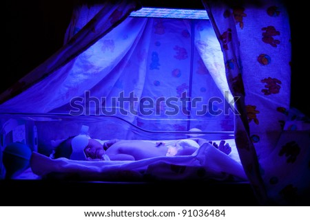 Newborn baby with neonatal jaundice and high bilirubin hyperbilirubinemia under blue UV light for phototheraphy. - stock photo