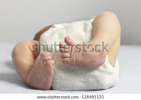 Newborn with bilateral club foot, also called congenital talipes equinovarus - stock photo