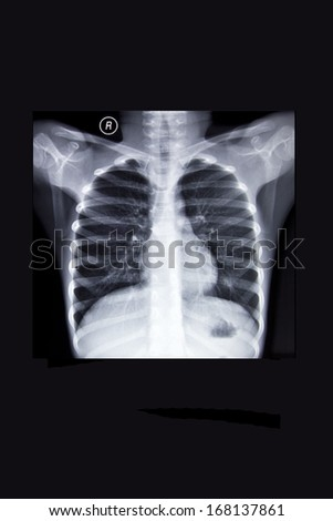 Normal chest X-ray film - stock photo