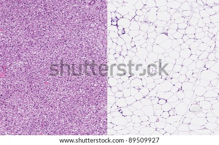 Normal healthy brown fat (left image) and normal healthy white fat. Brown adipose tissue or hibernating gland with small fat vacuoles (left) and white adipose tissue (right) with large fat vacuoles - stock photo