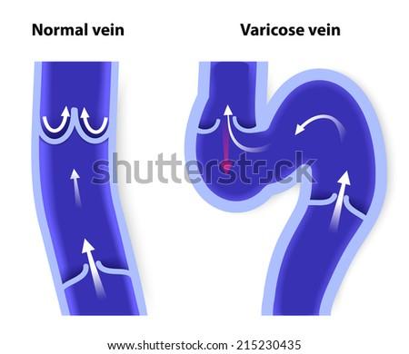 normal vein and varicose vein - stock photo