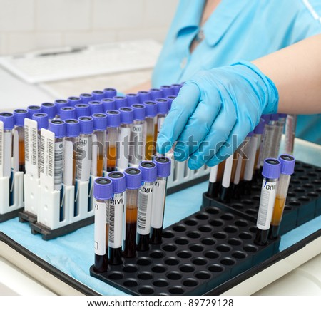 nurse arranges test tubes with blood on a tray