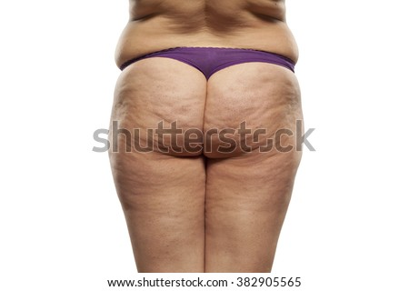 obese female buttocks with cellulite and stretch marks - stock photo