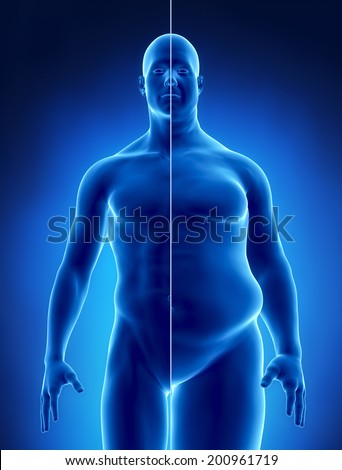 Obesity concept    - stock photo