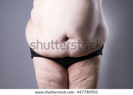Obesity female body, fat woman belly close up on gray background - stock photo
