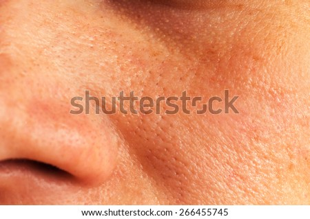 Oily skin and pores on the face of the woman - stock photo