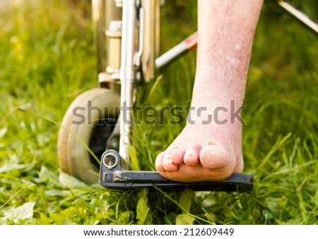 Old disabled patient's leg with severe arteriosclerosis. - stock photo