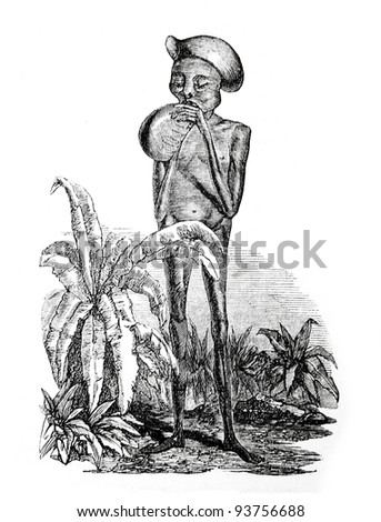 Old engraving of emaciated boy of Kitch tribe. Created by Neuville, published on Travel to upper Nile and exploration of its sources by Sir Samuel White Baker (British explorer), Moscow, 1868 - stock photo