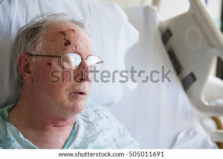 Old man sleeping in hospital bed after falling and injuring hims
