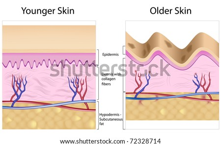 Old skin anatomy characterized by presence of age spots and wrinkles caused by atrophy of dermis (collagen fibers), epidermis, and blood supply