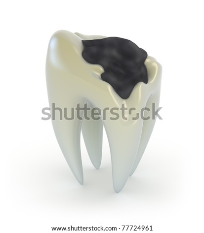 Old Tooth with caries isolated on white - stock photo