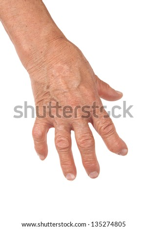 Old Woman's Hand Deformed From Rheumatoid Arthritis Isolated on White Background