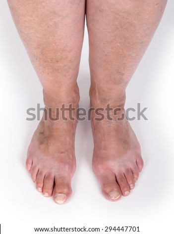 Old woman with varicose veins, isolated on white