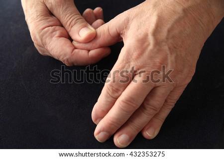 Older man has an aching thumb. - stock photo