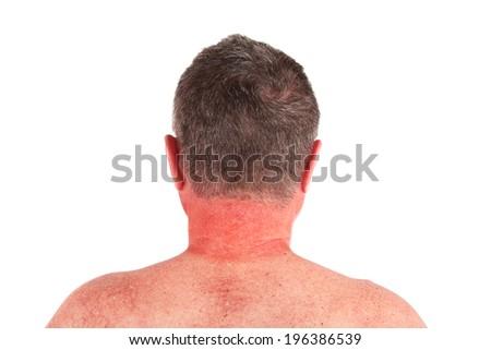 Older man with sunburned neck - stock photo