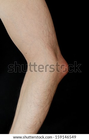 Olecranon bursitis, also known as student elbow, is a medical condition caused by the inflammation of the bursa located under the elbow Olecranon due to strong trauma or repetitive smaller traumas - stock photo