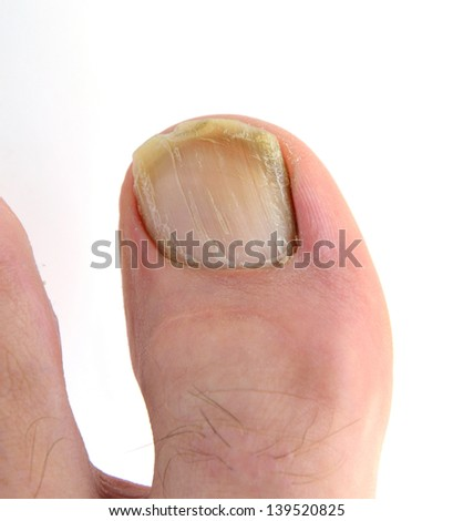 Onychomycosis. - stock photo