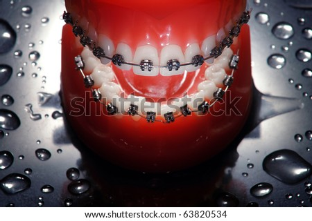Open dentures with braces , water drops background,dramatic lighting - stock photo