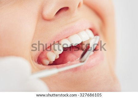 Open mouth and teeth during checkup
