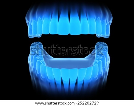 Open teeth by x-ray.(front) - stock photo