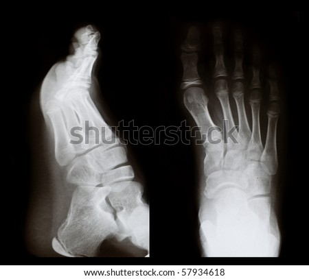 Original x-ray image of a foot, front and side view - stock photo