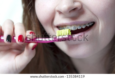 Orthodontic brush usage for cleaning of bracket system - stock photo