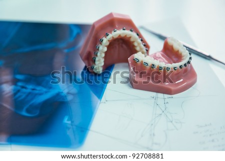 orthodontic tools and xray in laboratory - stock photo