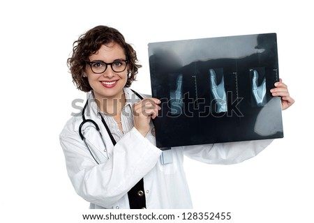 Orthopedic surgeon displaying patients x-ray sheet to the camera. - stock photo