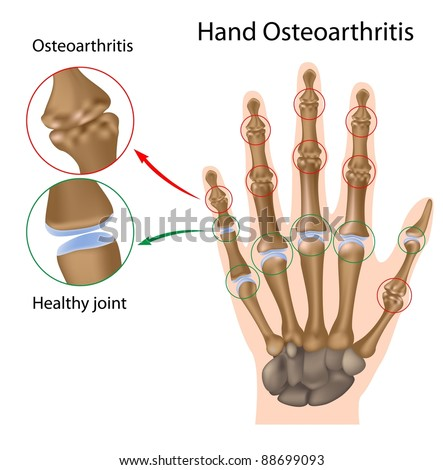 Osteoarthritis of the hand - stock photo