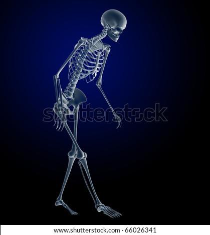 Osteoporosis, Elderly Woman Skeleton Walking with Osteoporosis - stock photo
