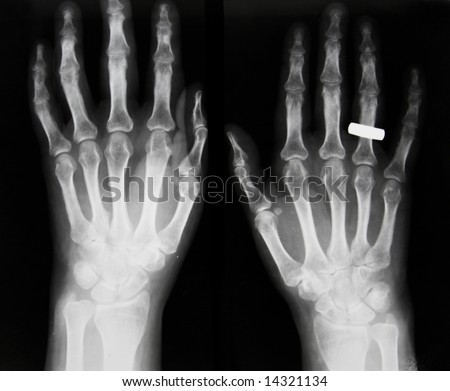 Osteoporosis, osteoarthrosis IV; subluxation of proximal phalanx IV finger
