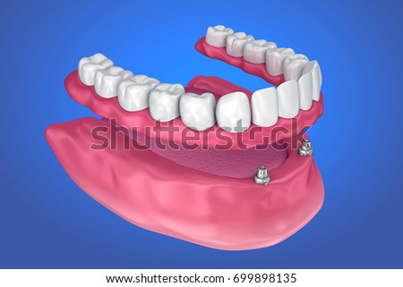 Overdenture to be seated on ball attachments. 3D illustration
