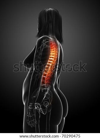 overweight female - backache