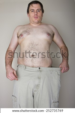 Overweight man holding his pants out to the side showing how much weight he has lost - stock photo