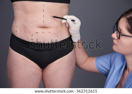Overweight, obesity, fat woman, fat belly, hips and excess weight.Surgeon, liposuction, body.cellulite, stretching - stock photo