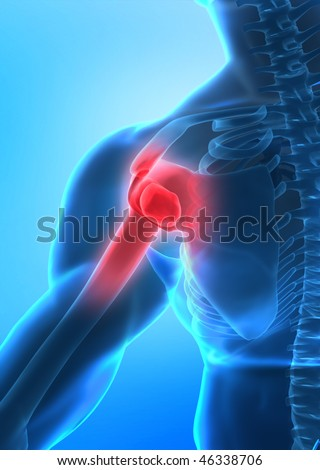 Pain in arm concept in x-ray view - stock photo