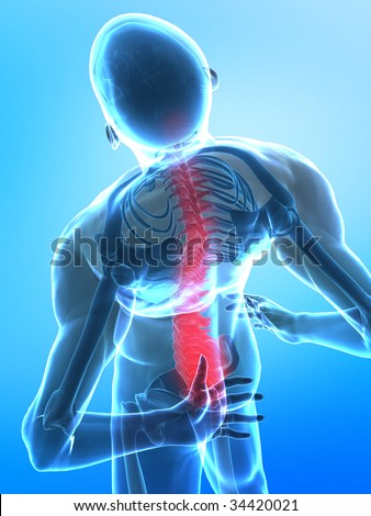 Pain in bottom side of spine - stock photo