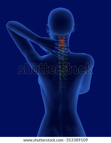 Pain in the neck x-ray scan with visible cervical vertebrae rear view - stock photo