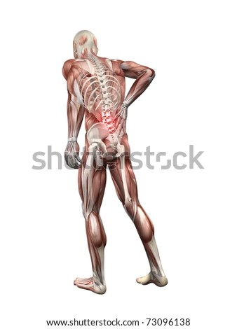 painful back illustration - stock photo
