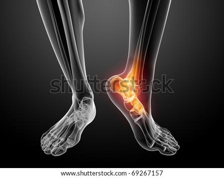 painful foot illustration - stock photo