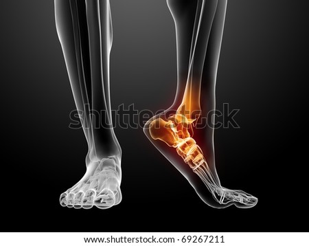 painful foot illustration - stock photo